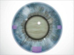 Taglio della cornea - Chirurgia della cataratta