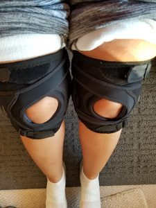 knee braces on woman's legs to prevent sublaxations caused by hypermobility