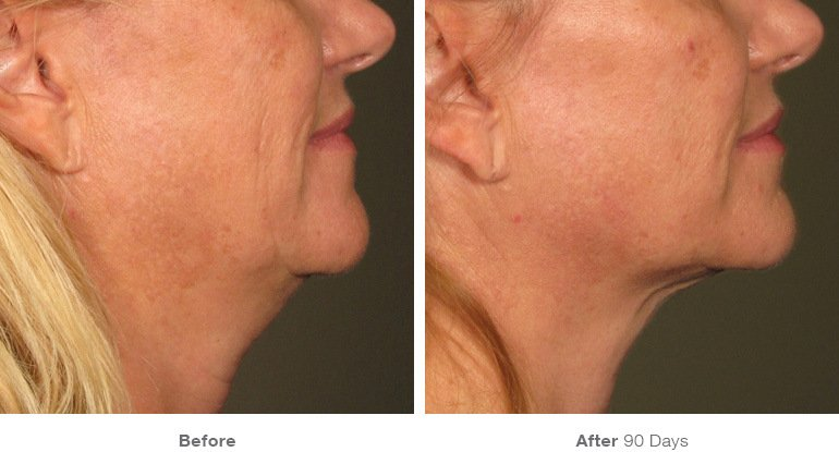 Ultherapy: Extreme Results Without Surgery to Remove Facial