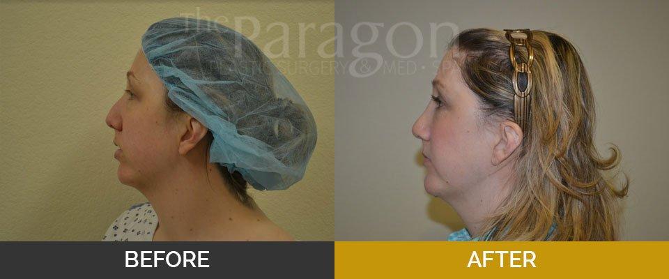 Facial Cosmetic Services | Plastic Surgery Dallas TX