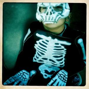 {the skeleton}
