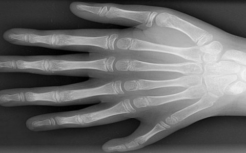 six fingered hand