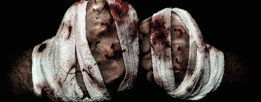 Street fights-Bloody knuckles