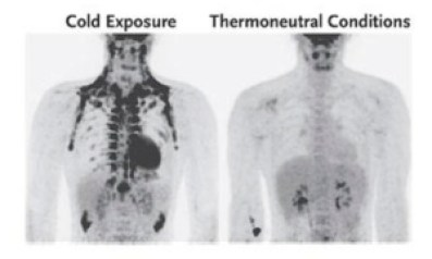Brown fat distribution during cold exposure