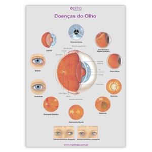 Poster doencas do olho martinato decoração consultorio oftalmo