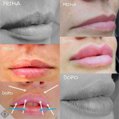 aumento delle labbra 160320 2