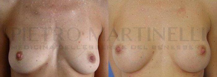 foto lipofilling seno