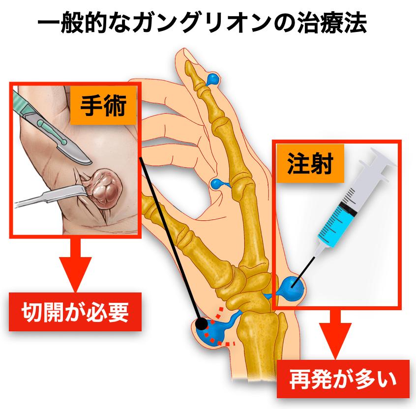 ガングリオン 手術