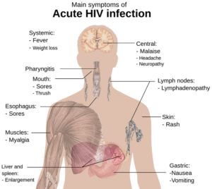 Symptoms of HIV Infection (2)