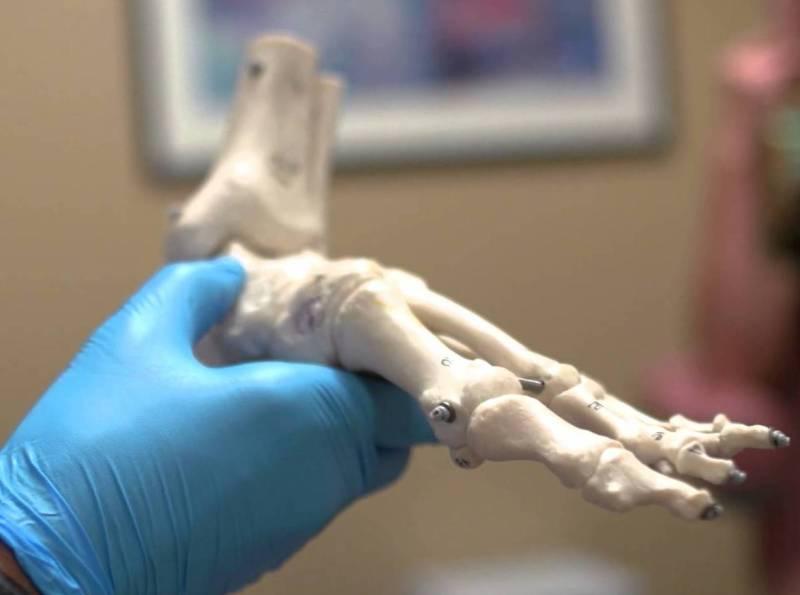 ankle bones