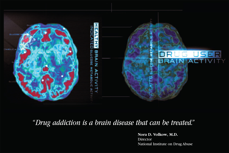 Is Addiction A Disease