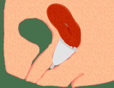 Menstrual_cup_pos3