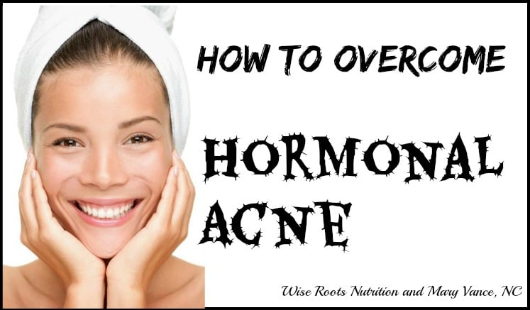 How to Overcome Hormonal Acne