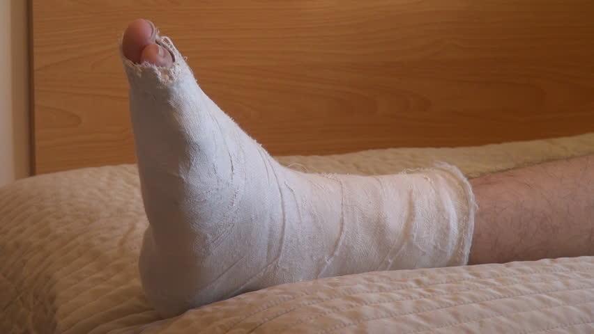 the best way to clean kitchen cabinets fluorescent lighting ideas treatment of fracture (broken bone) - masala tv