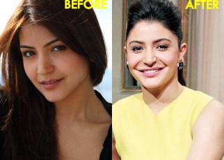 Anushka Sharma Lip Job