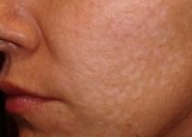 jiotes en la piel