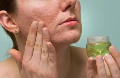 5 Consejos para Quitar las Cicatrices del Acné