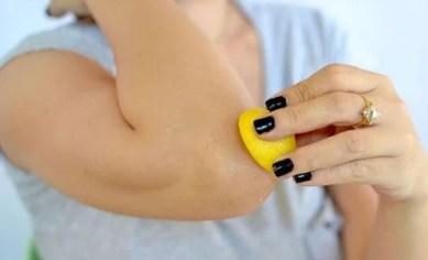 Elimina las manchas de forma natural