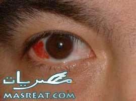 اعراض و علاج فيروس التهاب ملتحمة العين