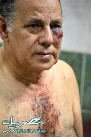 ضرب ابو العز الحريري و الاعتداء عليه