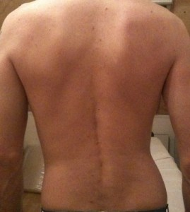Foto voor de Dorn methode behandeling