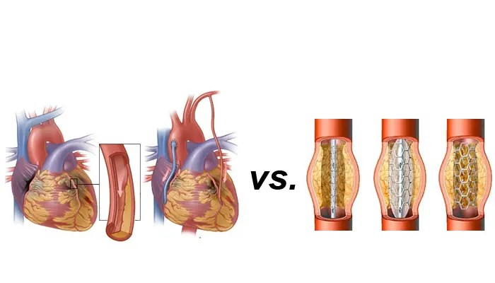Study: Bypass better than stents for non-compliant ...