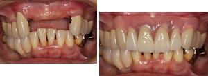 入れ歯治療(精密入れ歯)