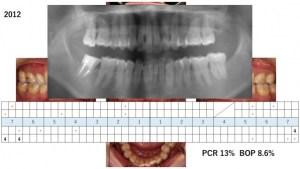 予防歯科のことなら豊中市 ますだ歯科医院 必要資料