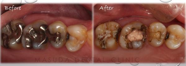 銀歯のリスク 虫歯再発のしやすさ 豊中市の歯医者 ますだ歯科医院