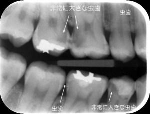 自覚症状のない虫歯 歯と歯の間に大きな虫歯があります