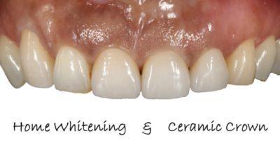 ホワイトニング 審美歯科 豊中