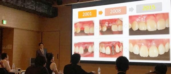 豊中市 ますだ歯科医院 講演2
