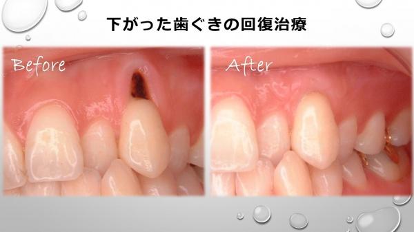歯ぐき下がりの治療前後 実際の治療例