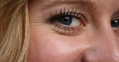 Ρυτίδες στα μάτια