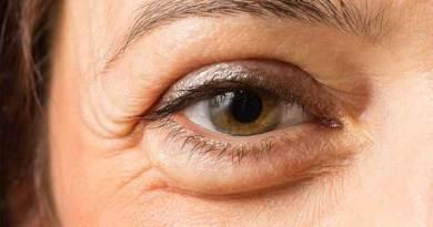 Πρησμένα μάτια: Αιτίες και πώς να απαλλαγείτε