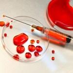 Quimioterapia para combater câncer pode estar com dias contados