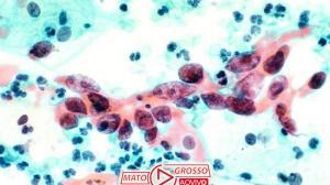 Novo remédio tem sucesso contra câncer em estágio avançado 184