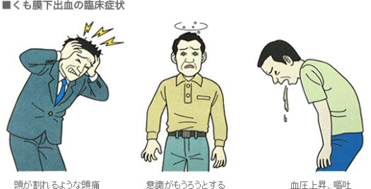 くも膜下出血の臨床症状
