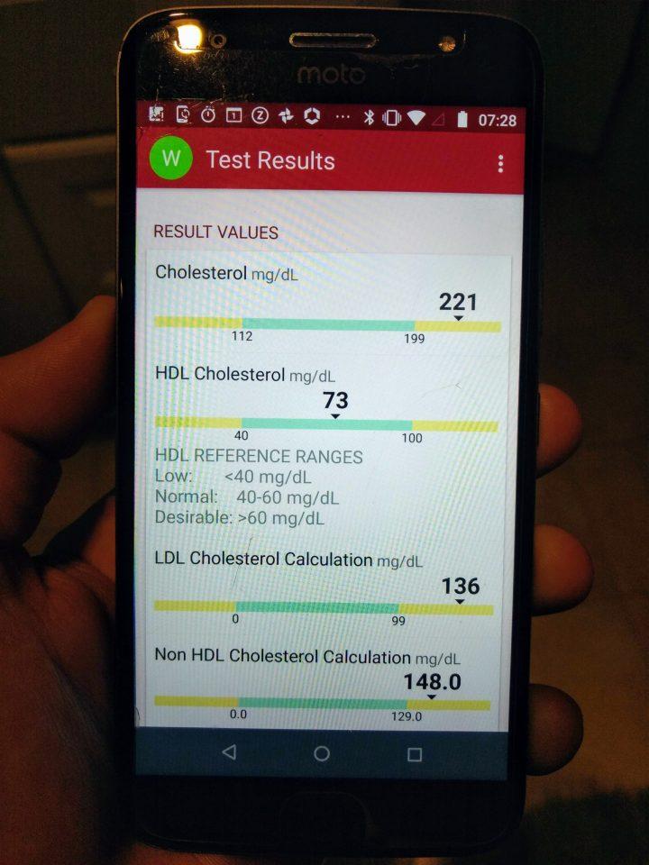 My free Lipid Panel results (80061)