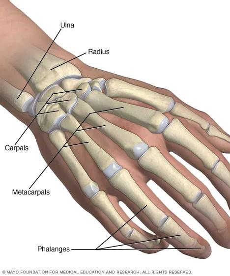Broken wrist/broken hand - Symptoms and causes - Mayo Clinic