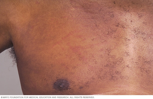 Chronic hives - Symptoms and causes - Mayo Clinic