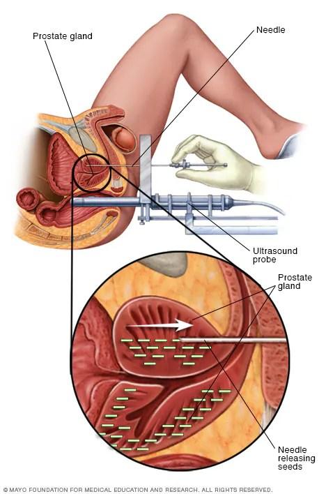 Permanent prostate brachytherapy