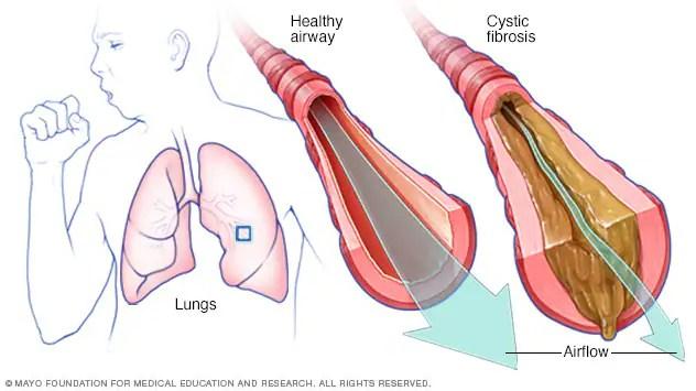 التلي ف الكيسي الأعراض والأسباب Mayo Clinic مايو كلينك