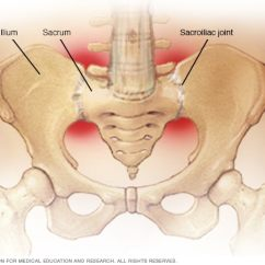 Sacroiliac Joint Diagram Lighting Circuit Wiring 2 Way Joints Mayo Clinic