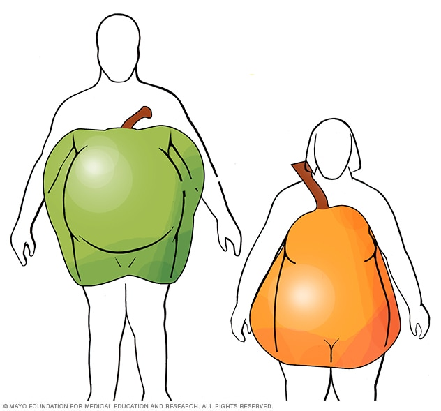 Apple and pear body shapes