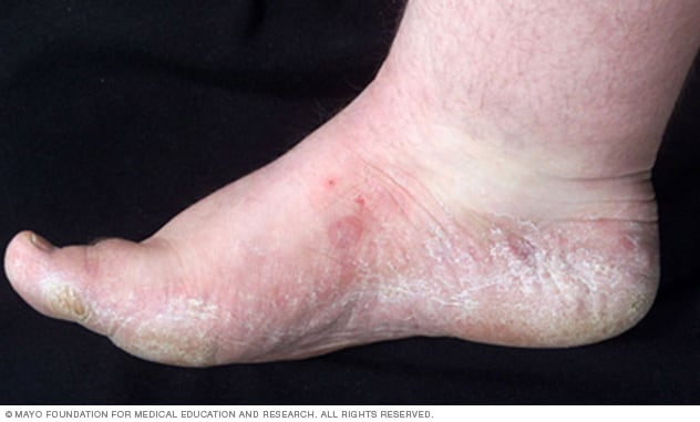 Athletes foot  Symptoms and causes  Mayo Clinic