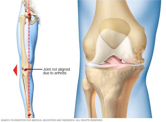Knee arthritis  Mayo Clinic