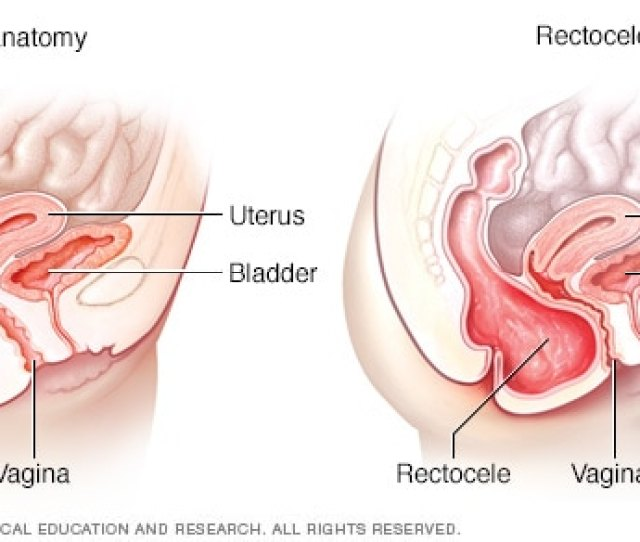 Normal Anatomy And Rectocele