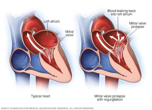 Corazón que presenta prolapso e insuficiencia de la válvula mitral