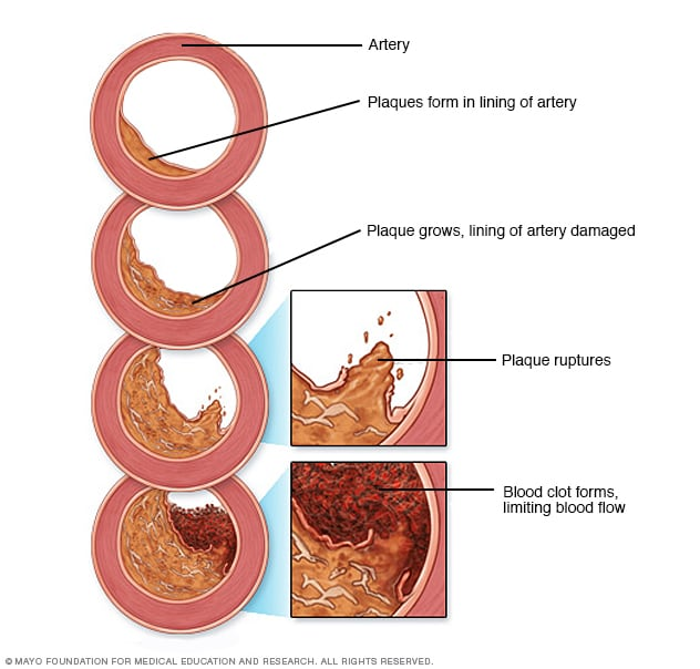 Peripheral artery disease (PAD) - Symptoms and causes ...